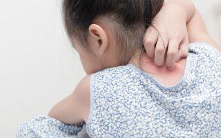 Може ли това общо състояние на кожата да бъде симптом на грипа?
